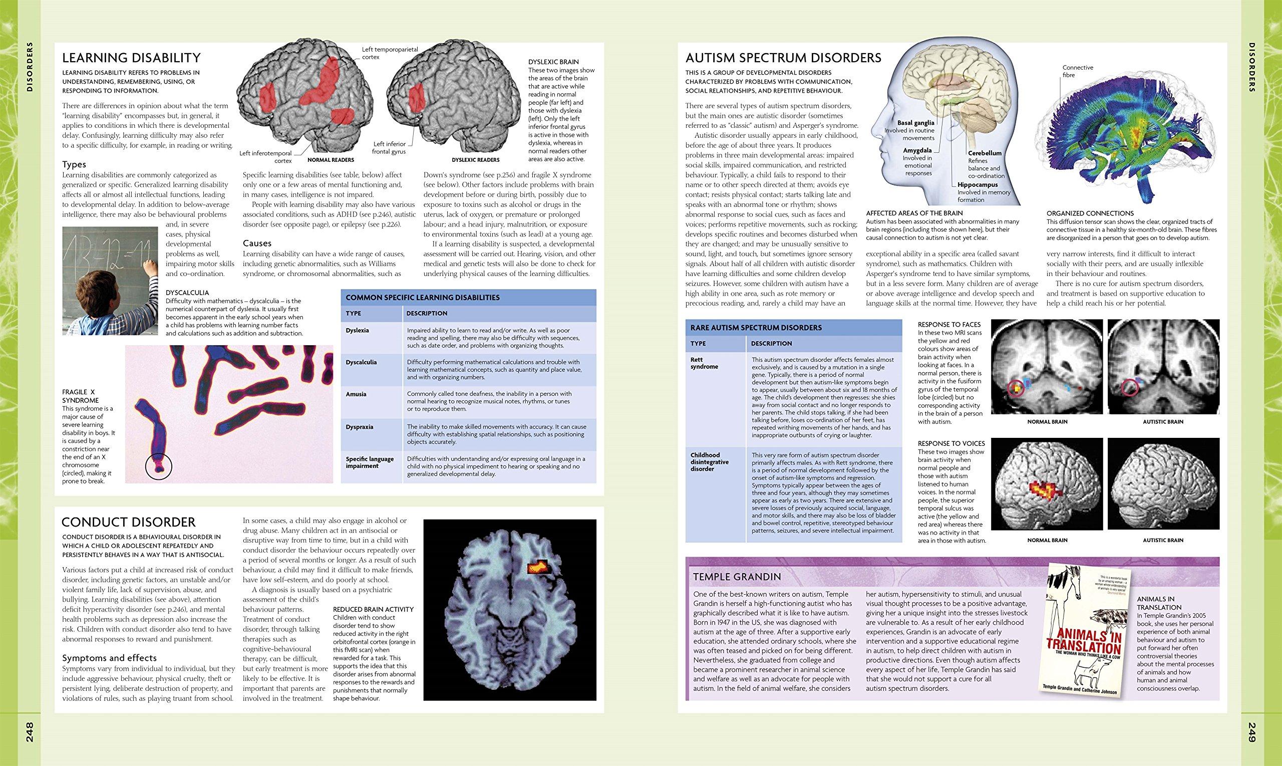 The human brain coloring book diamond - The Human Brain Coloring Book Diamond 29