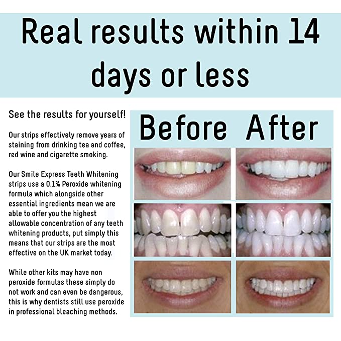 Professional high strength teeth whitening strips by pro bright 1 professional high strength teeth whitening strips by pro bright 1 hour express whitening 14 packs of teeth whitening strips up to 2 shades lighter solutioingenieria Image collections