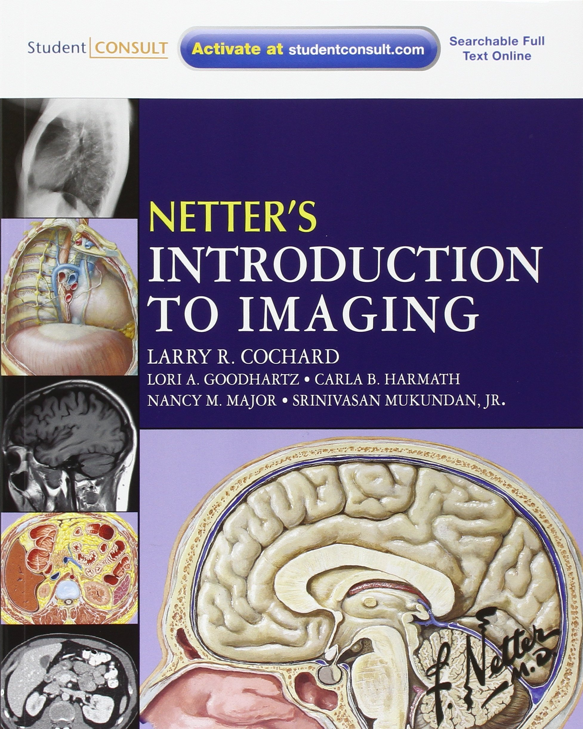 Netter\'s Introduction to Imaging: with Student Consult Access, 1e ...