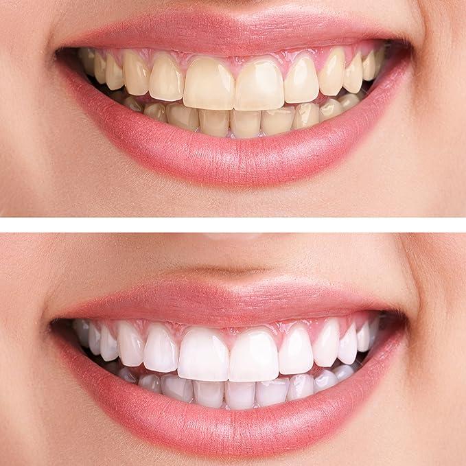 Blanqueador Dental Profesional Blanqueamiento Dental Gel Blanqueador Kit Blanqueamiento De Dientes Meawhite Pen Lápiz Blanqueador Dental Sin Peróxido Teeth ...