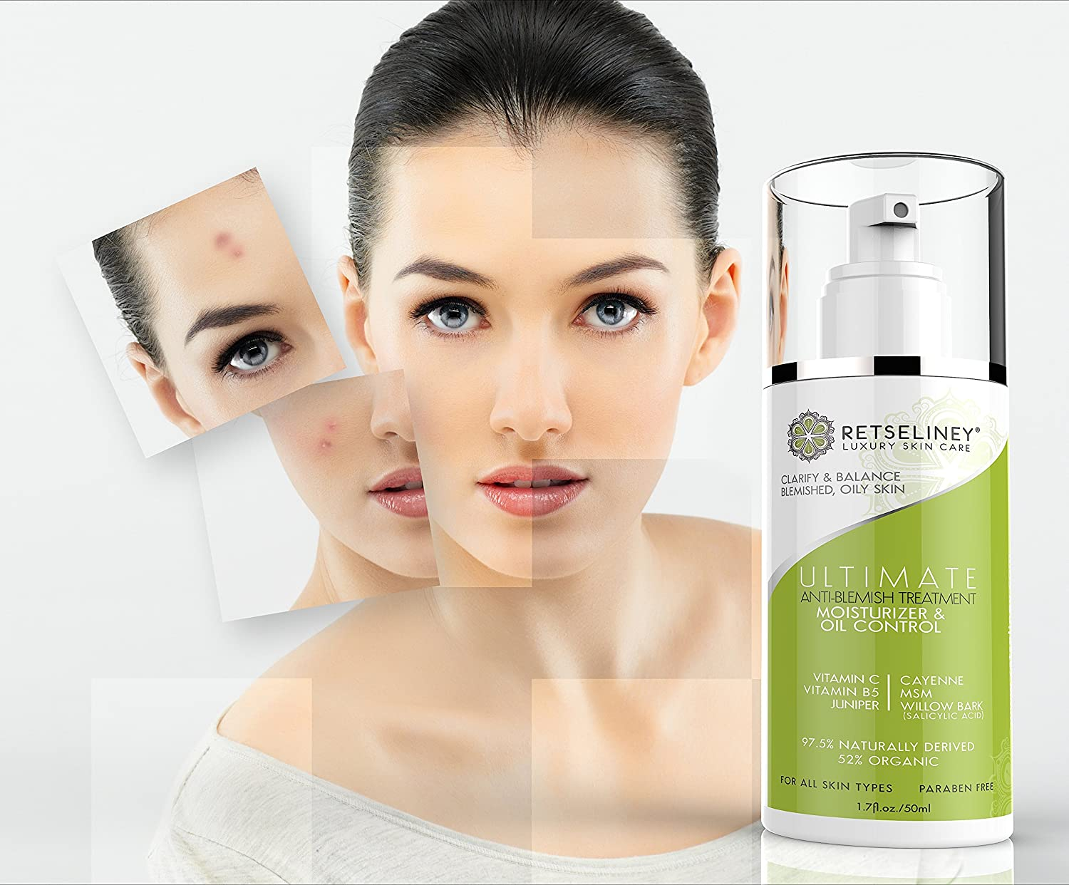 Absorb Health Anti-Blemish Mask | 1oz | Synergistic Blend to Banish Blemishs Beyond the Face