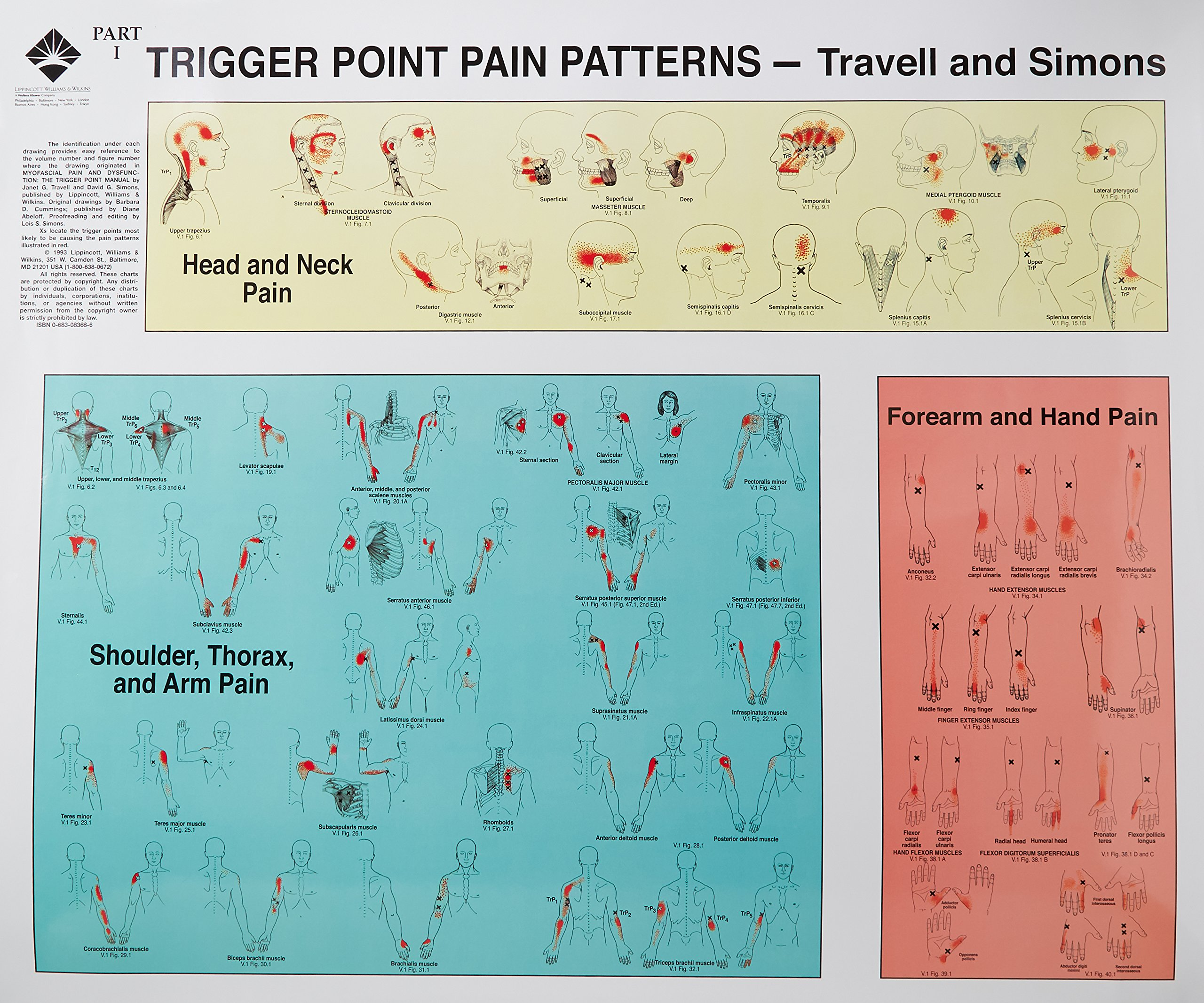 Trigger Points of Pain: Wall Charts (Set of 2) by LWW