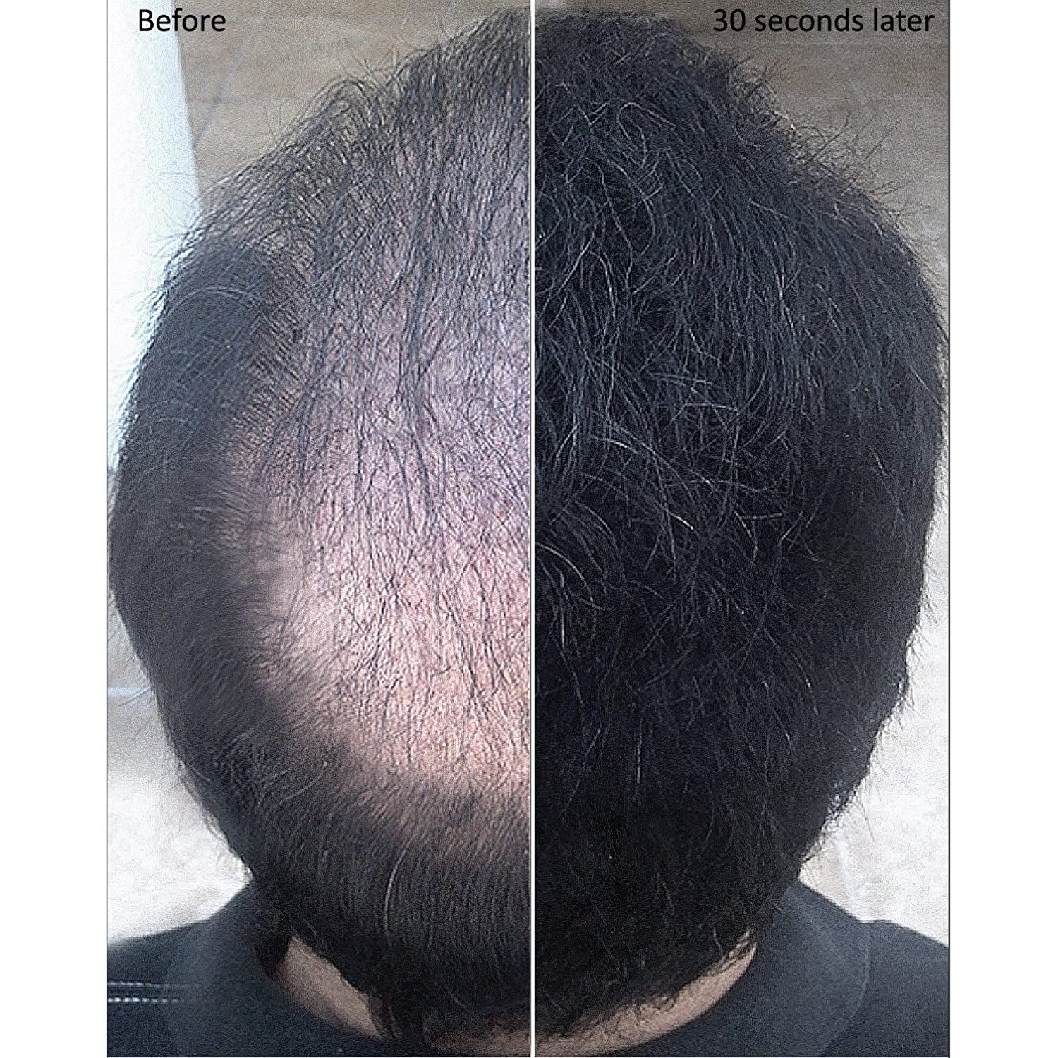 Black Color Samson Best Hair Loss Concealer Building Caboki Fiber Usa Original Fibers Container With 25grams Also Fits Toppik Xfusion Spray Applicators Beauty