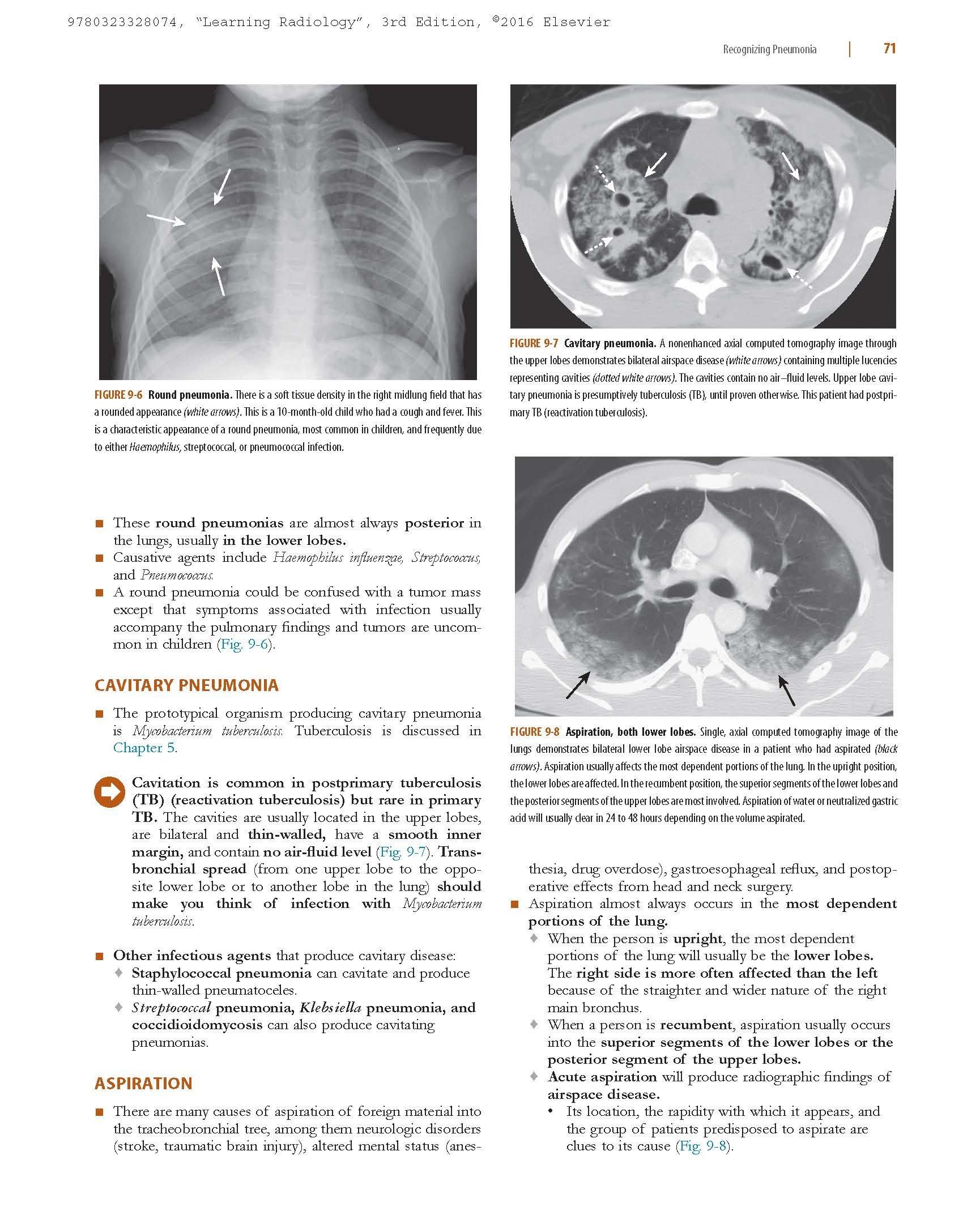 Learning Radiology: Recognizing the Basics: Amazon.de: William Herring: Fremdsprachige Bücher
