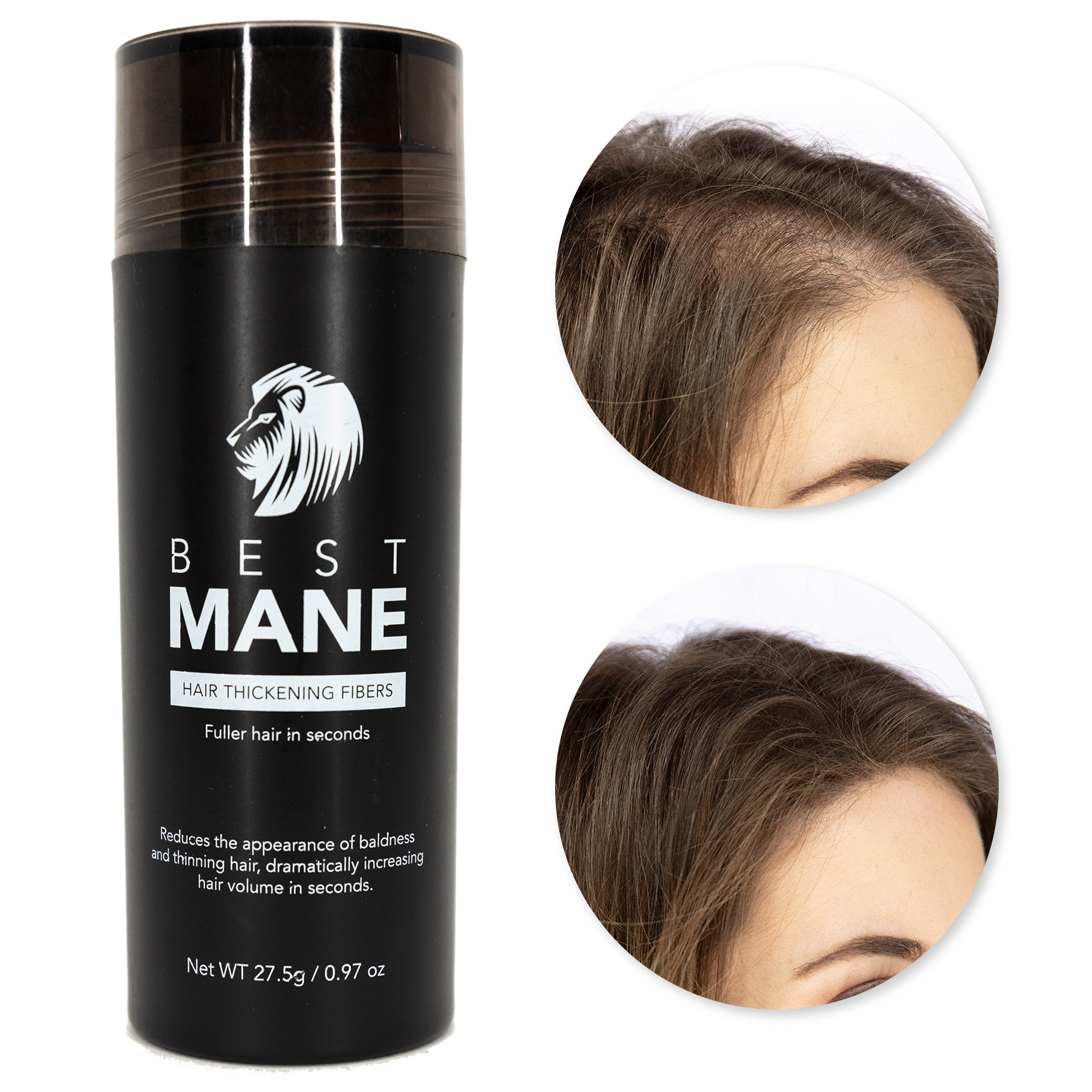 Premium Hair Thickening Fibers for Women & Men   0.97 oz (Dark Brown)