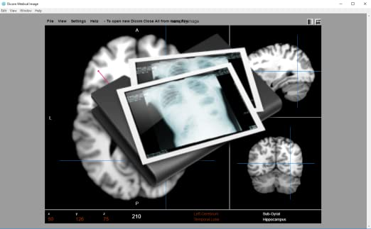 Dicom Image Viewer [Download]