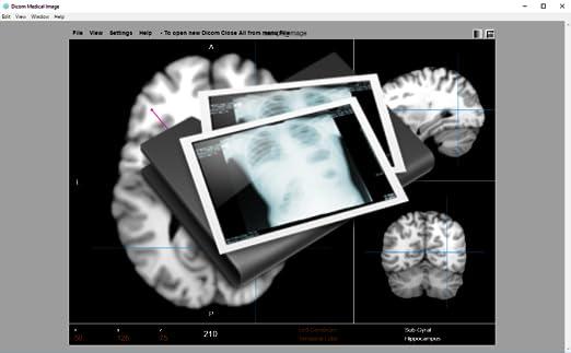 Dicom Image Viewer [Download]