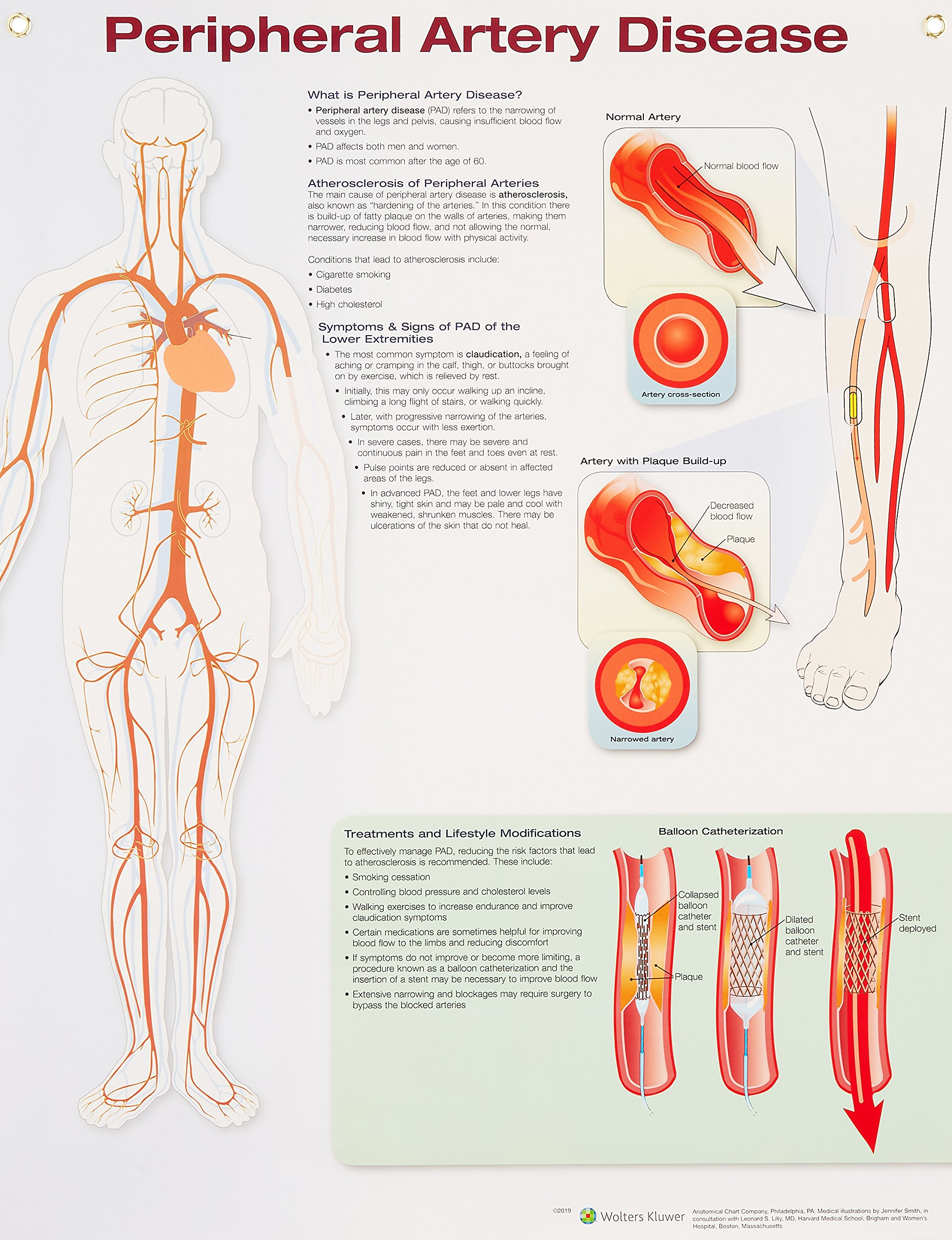 Peripheral Artery Disease Anatomical Chart Com 9781496370013