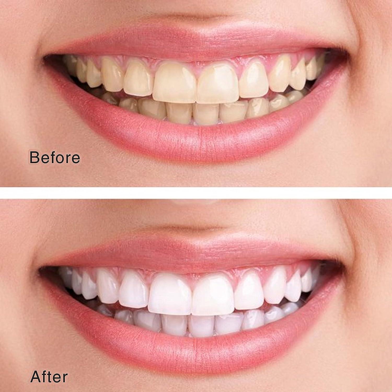Amazon Professional Teeth Whitening Kit Made In Usa