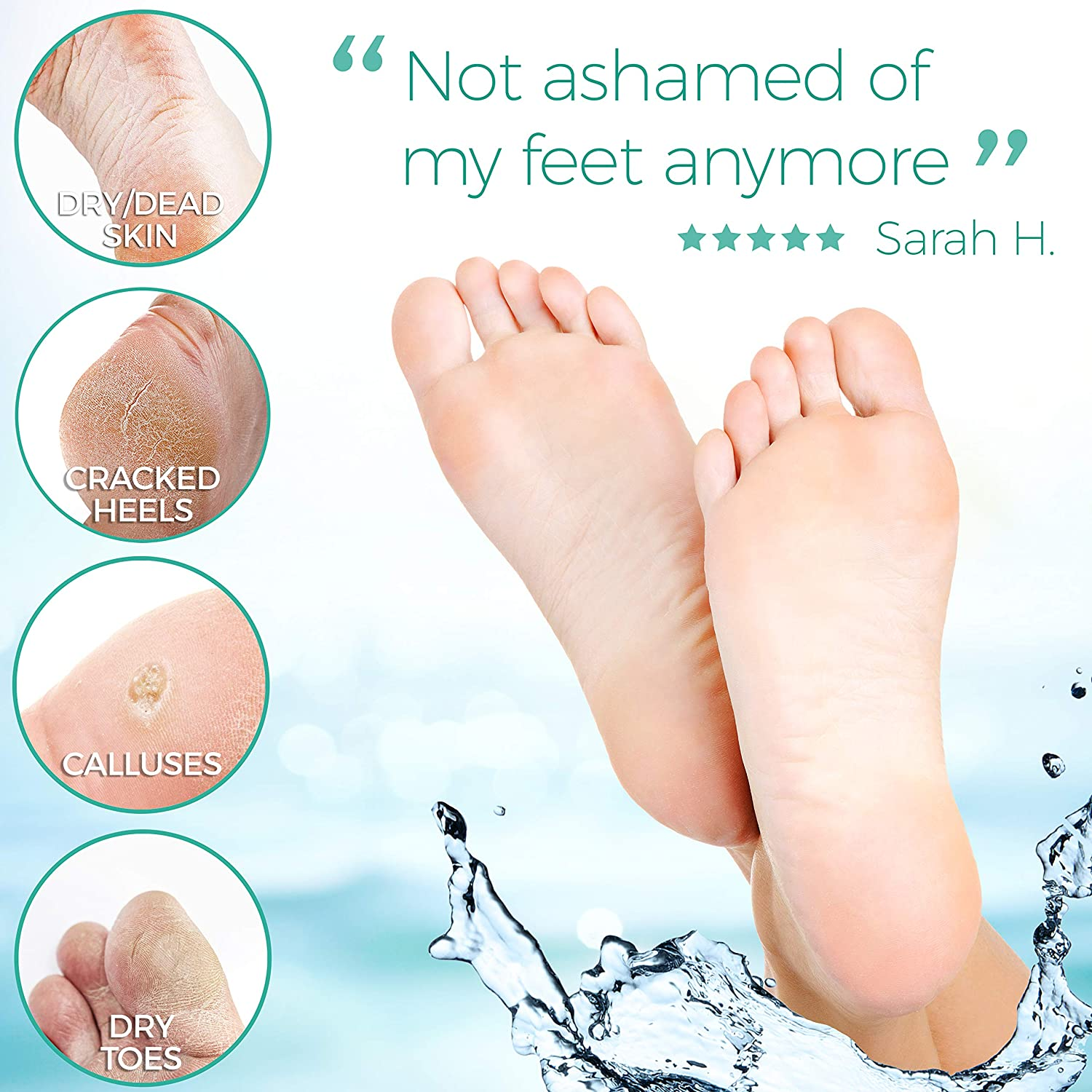 Amazon.com: Foot Peel Mask - 2 Pack - For Cracked Heels, Dead Skin &  Calluses - Make Your Feet Baby Soft & Get a Smooth Skin, Removes & Repairs  Rough Heels, Dry