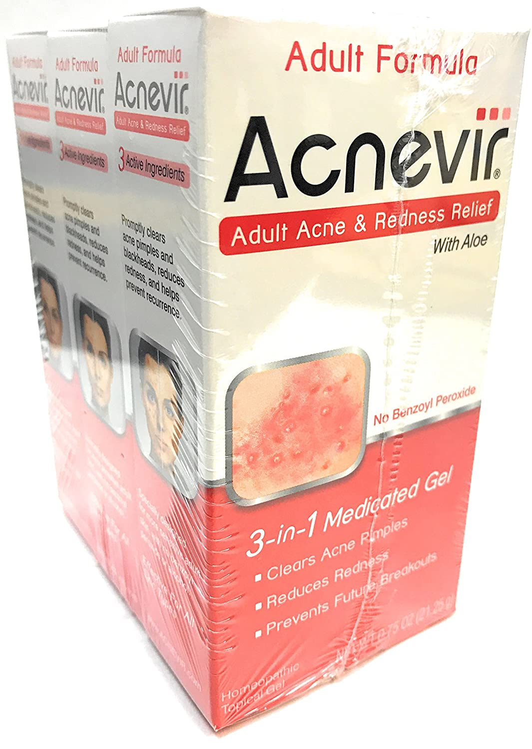 Acnevir Adult Acne & Redness Relief Gel, 0.75 Ounce (3-Pack)