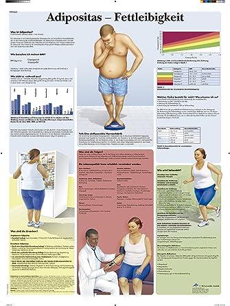 3B Scientific Lehrtafel laminiert - Adipositas - Fettleibigkeit ...