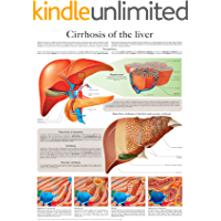 Cirrhosis of the liver e-chart: Full illustrated