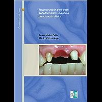 Reconstrucción de dientes endodonciados: Pautas de actuación clínica