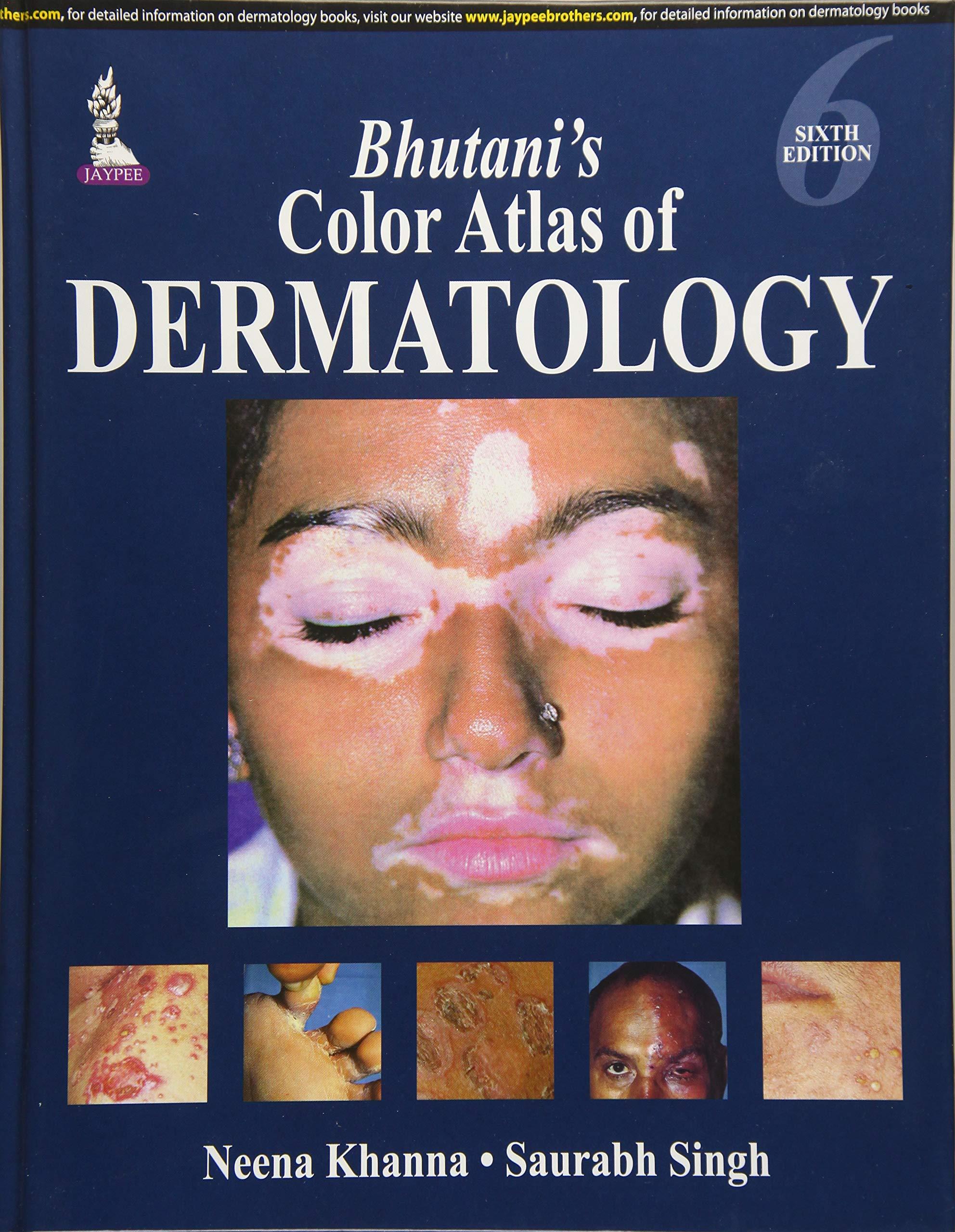 Neena Khanna Dermatology Book Pdf