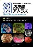 新しい診断基準・分類に基づいたNBI/BLI/LCI内視鏡アトラス