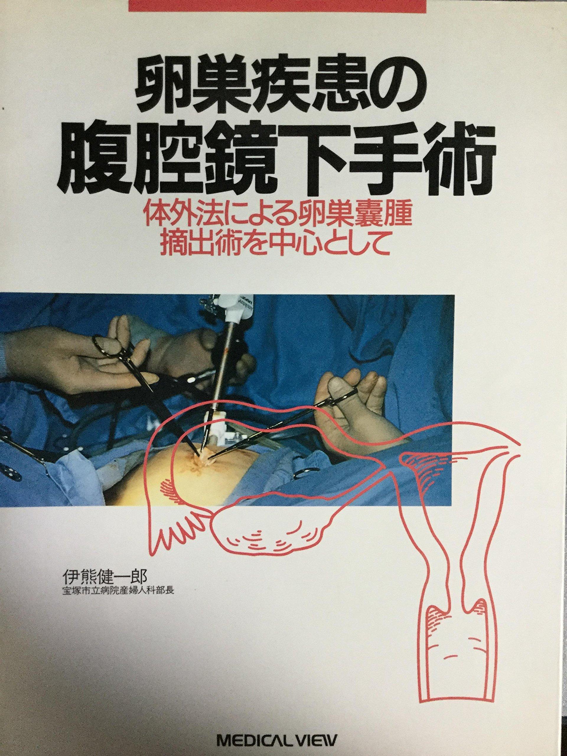 卵巣 嚢腫 腹腔 鏡 手術