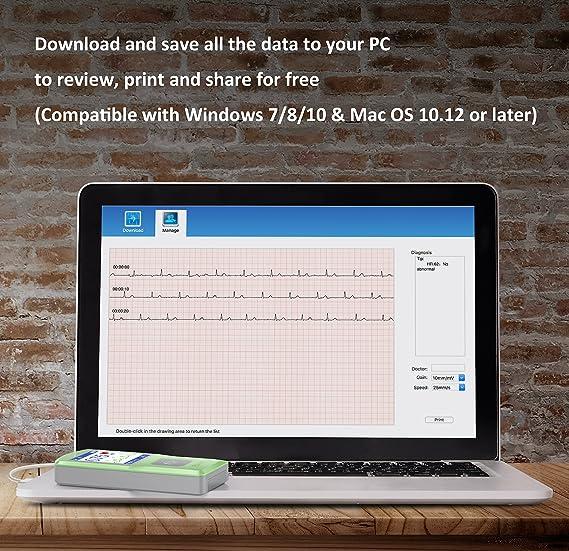 EMAY Monitor Portátil de ECG, Captura la frecuencia cardíaca, el ECG y los síntomas: Amazon.es: Salud y cuidado personal