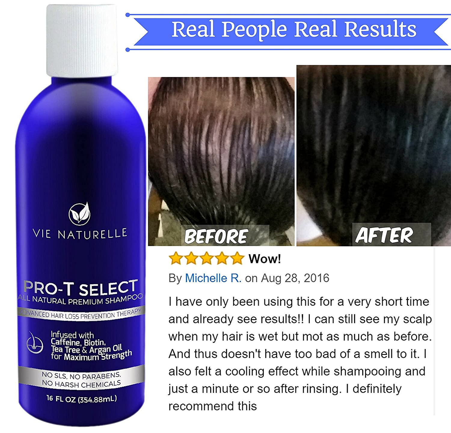Amazoncom Vie Naturelle Hair Loss Treatment Shampoo For Fast - How much biotin to take for hair growth
