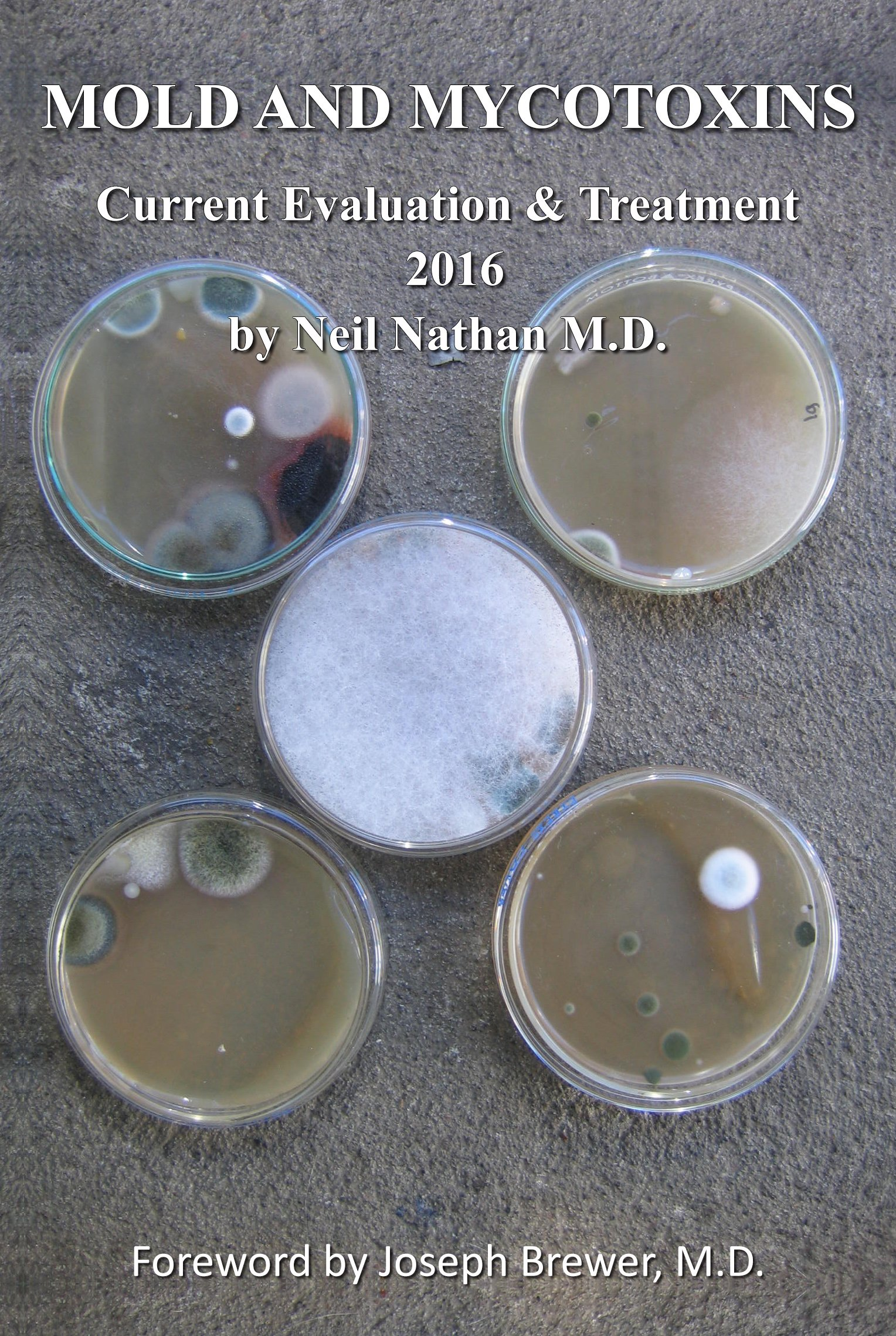 Mold And Mycotoxins  Current Evaluation And Treatment 2016  English Edition