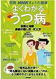 よくわかるうつ病 診断と治療、周囲の接し方・支え方 (別冊NHKきょうの健康)