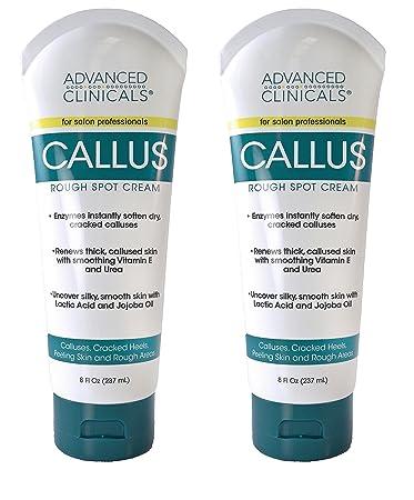 foot cream for calluses