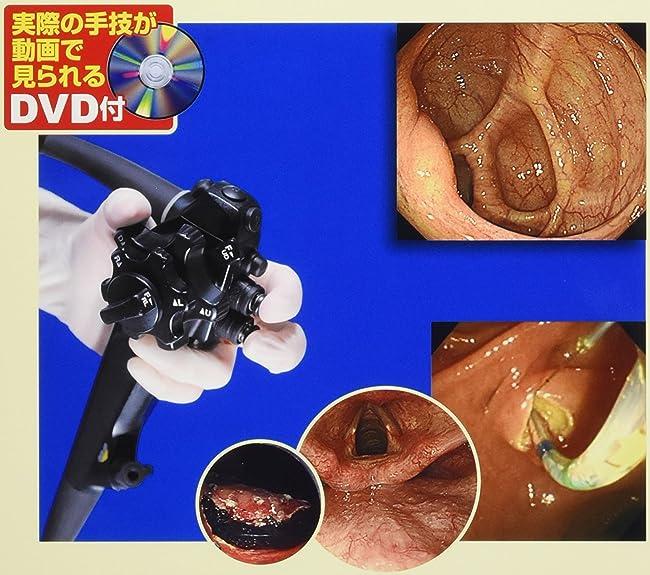 カラー写真で必ずわかる!消化器内視鏡―適切な検査・治療のための手技とコツ (ビジュアル基本手技 3)