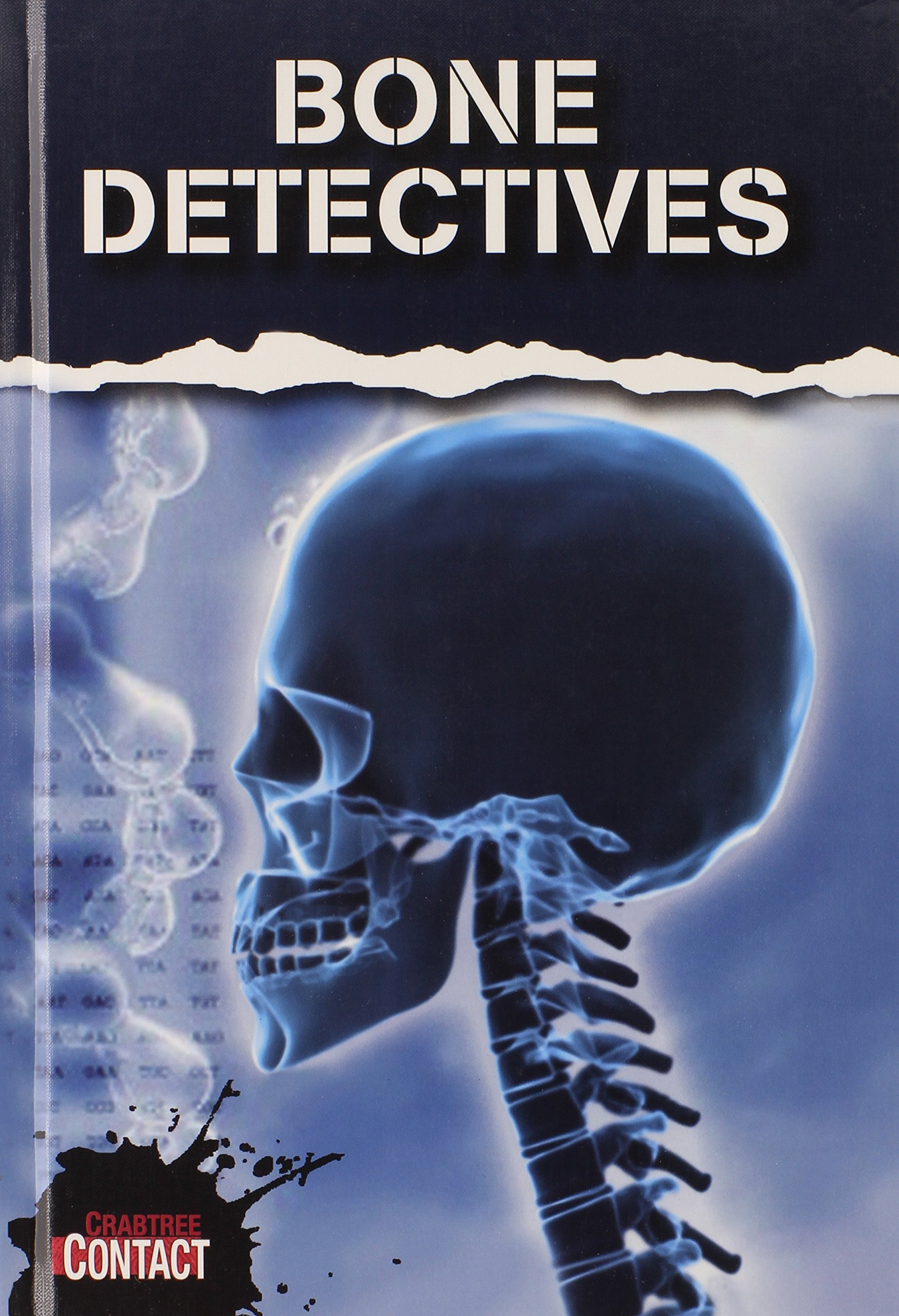 Bone Dectective (Crabtree Contact)