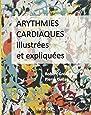 Arythmies cardiaques illustrées et expliquées