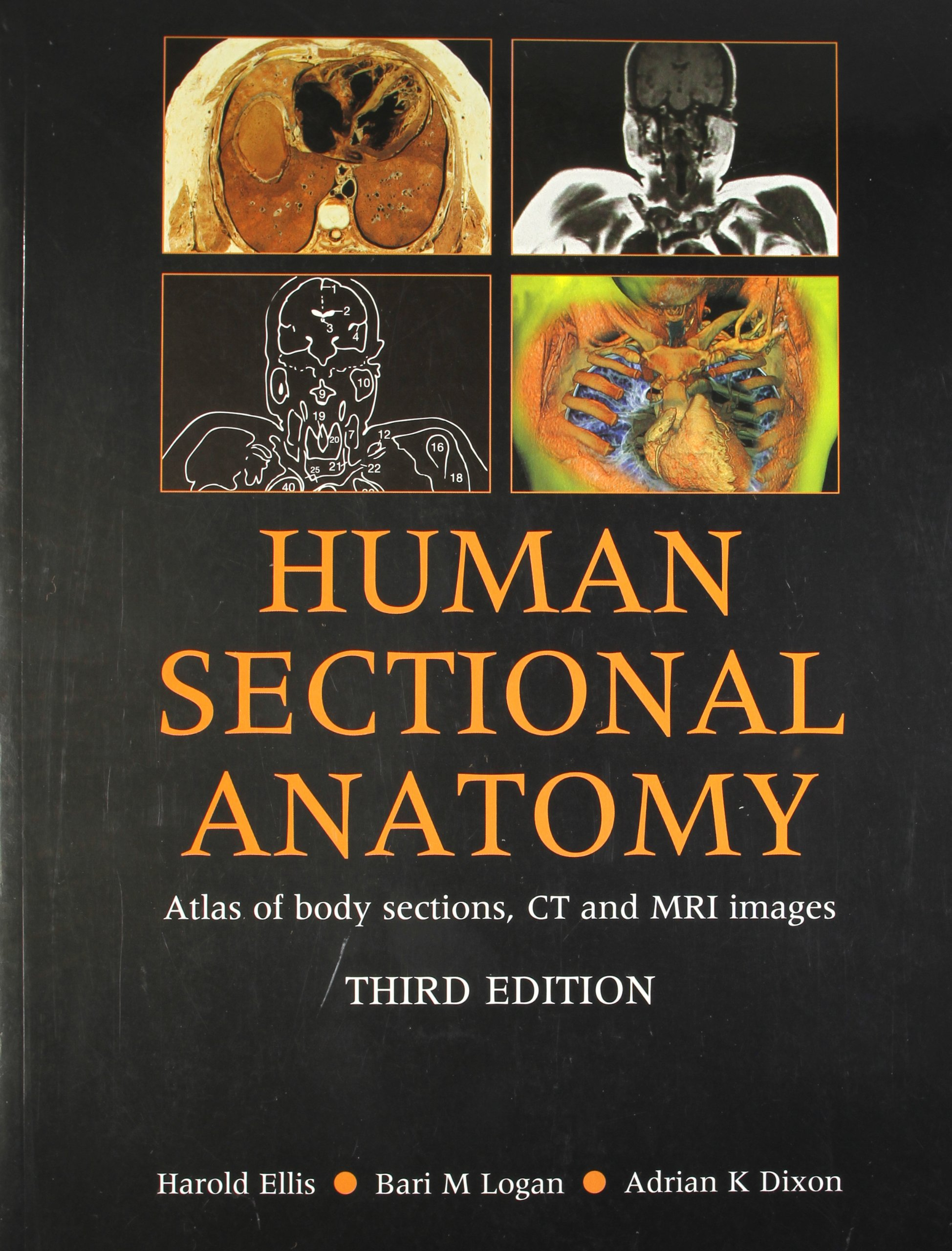 Human Sectional Anatomy Atlas of Body Sections, CT and MRI Images ...