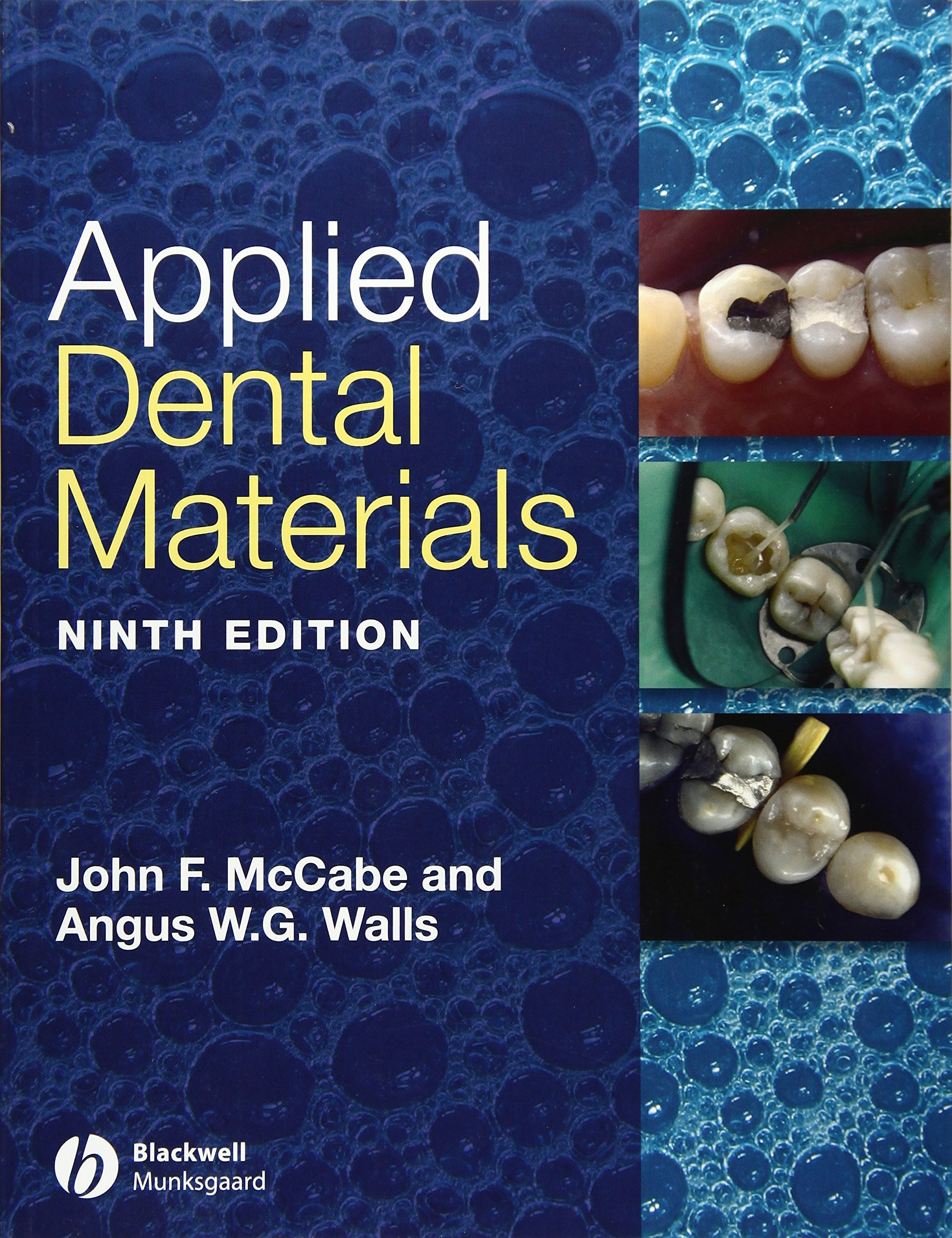 Applied Dental Materials, 9th Edition: Amazon.co.uk: John F. McCabe ...