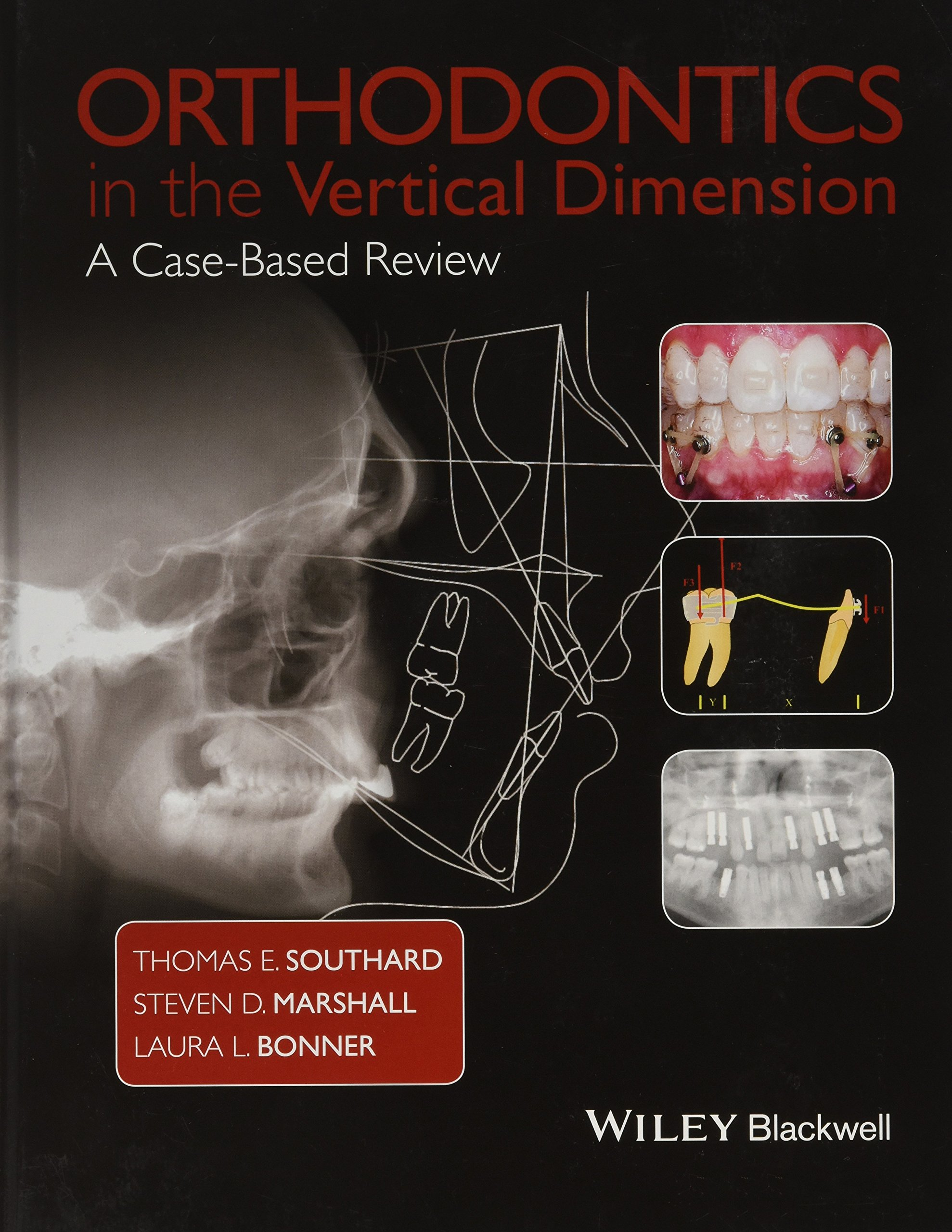 Orthodontics In The Vertical Dimension  A Case Based Review
