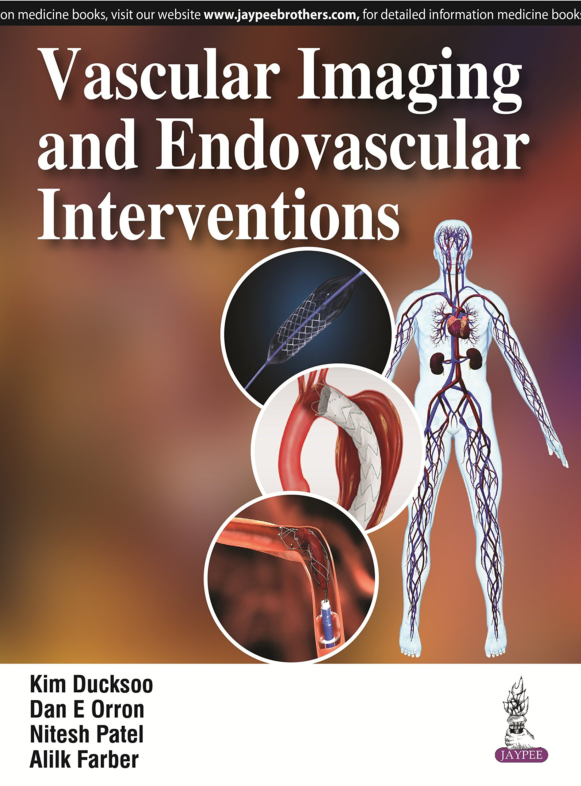Vascular Medicine and Endovascular Board Review Course — Now On CD