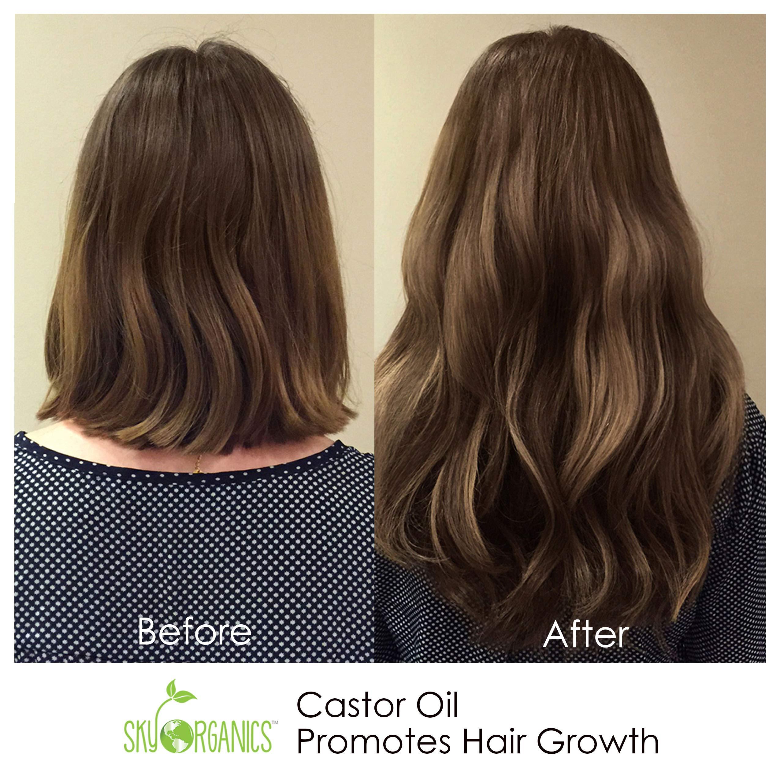 Castor Oil (16oz) USDA Organic Cold-Pressed, 100% Pure, Hexane-Free Castor Oil - Moisturizing & Healing, For Dry Skin, Hair Growth - For Skin, Hair Care, Eyelashes - Caster Oil By Sky Organics by Sky Organics (Image #5)