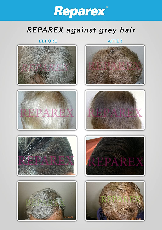 Amazon.com : Gray Hair Treatment Formula for Mustache and Beard ...