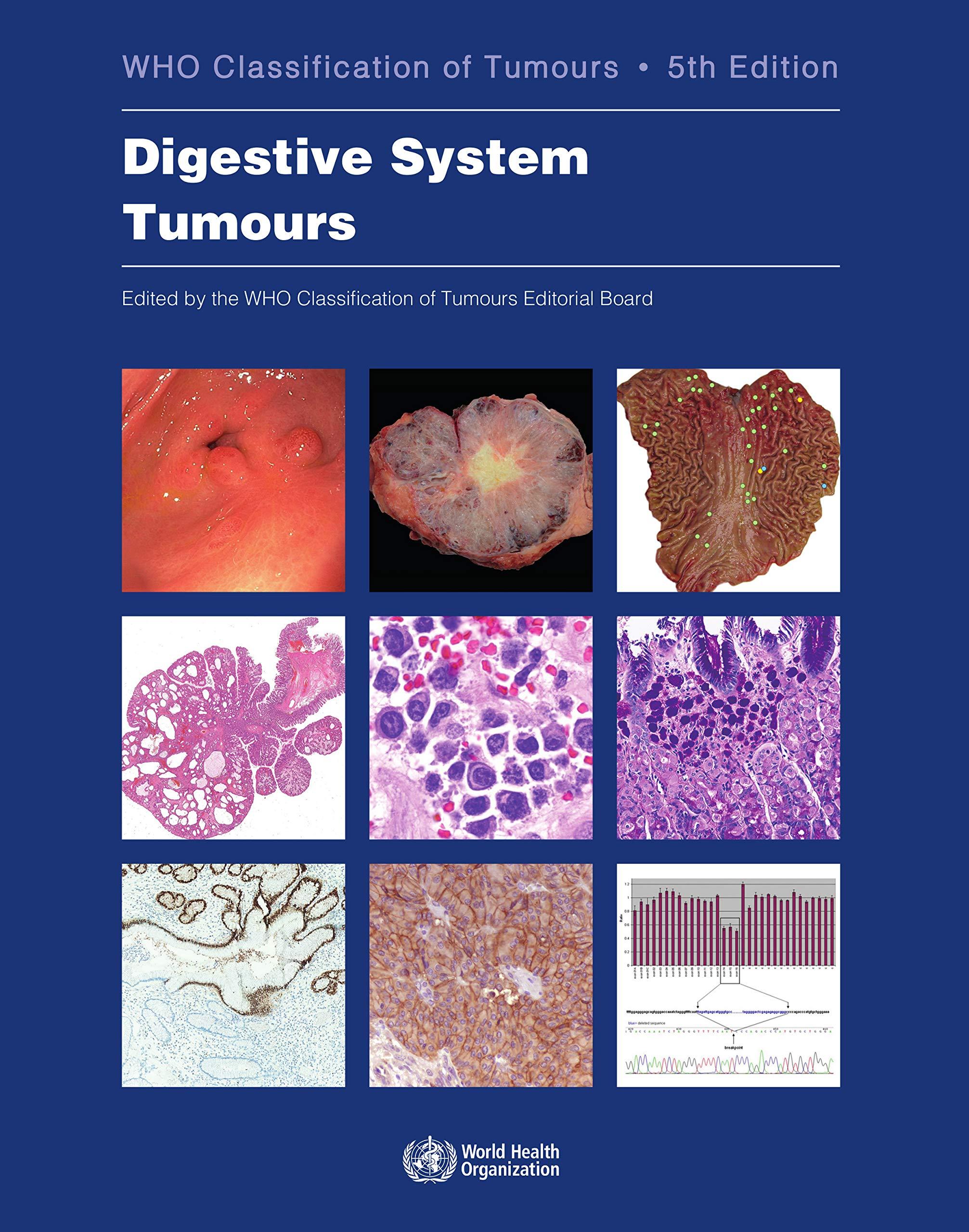 Digestive System Tumours (Medicine) by World Health Organization