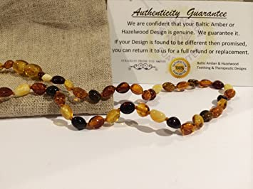 Magnus Baltic Amber Necklace For Migraines From Baltic Essentials