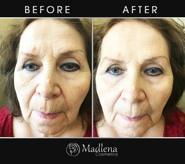 Premium Botox Alternative Anti-Aging Wrinkle Filler Cream, Instant  Smoothing of Lines/Textures,