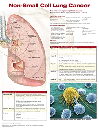 Non-small Cell Lung Cancer: Anatomical Chart Company: Amazon.co.uk ...