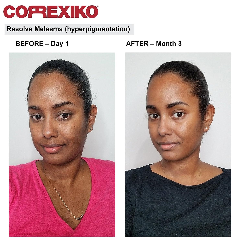 Skin Whitening & Lightening Pills  Advanced Formula with Liposomal  Glutathione, Uva Ursi, Pine Bark & Pomegranate extract