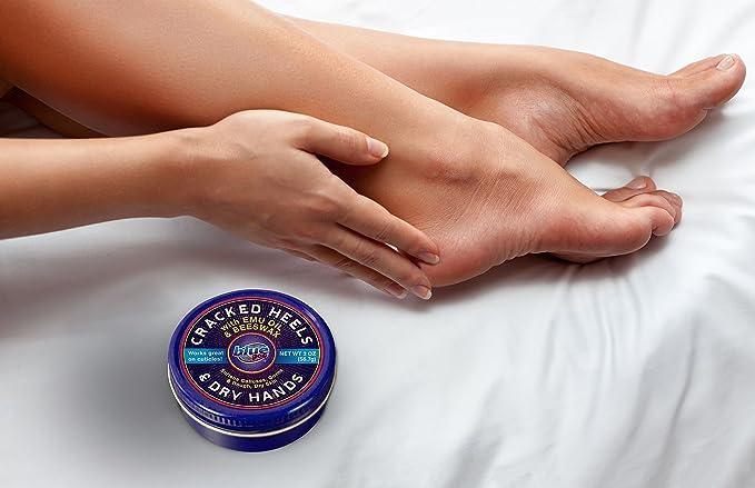 Buy Blue Goo Cracked Heel Foot Softener
