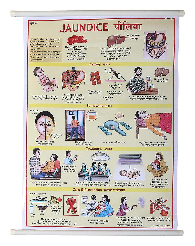 Vijay Surgical Jaundice Disease lamination Chart 50x70cm long