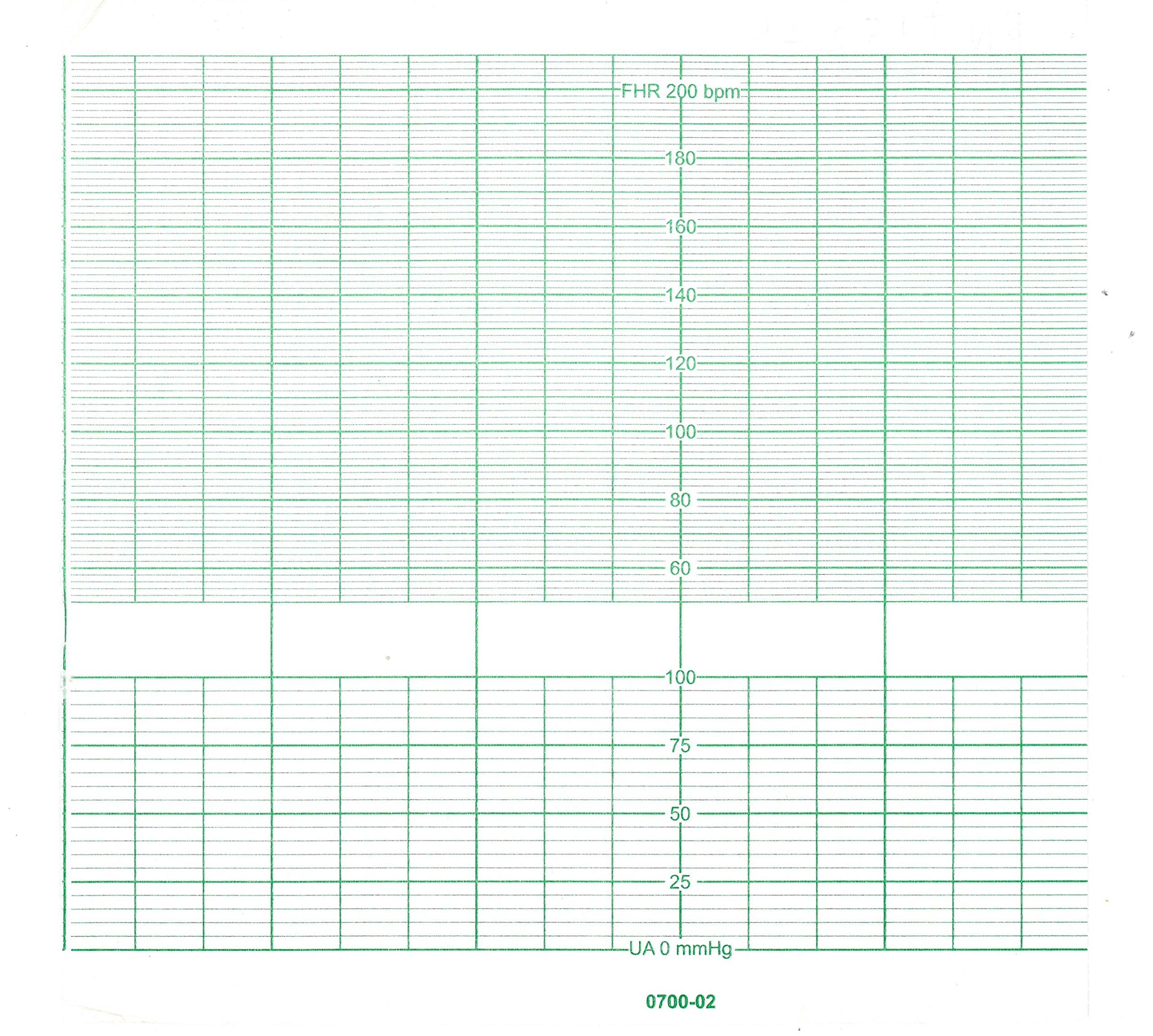 BIONET CARDIOCARE ECG PAPER 152MM X 25M (5)