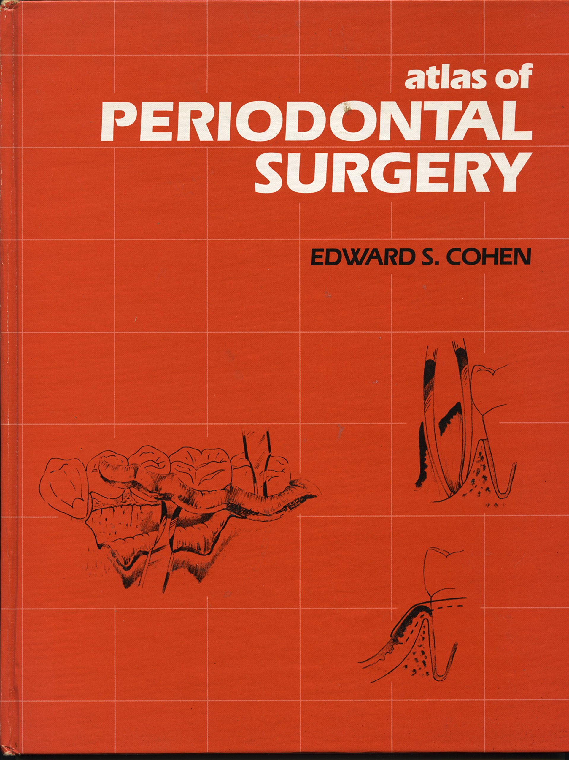 Atlas of Periodontal Surgery