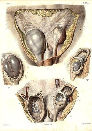 Antike Medical Kunstdruck-Anatomie Leistenbruch-Bauch-Pl. 38BIS ...