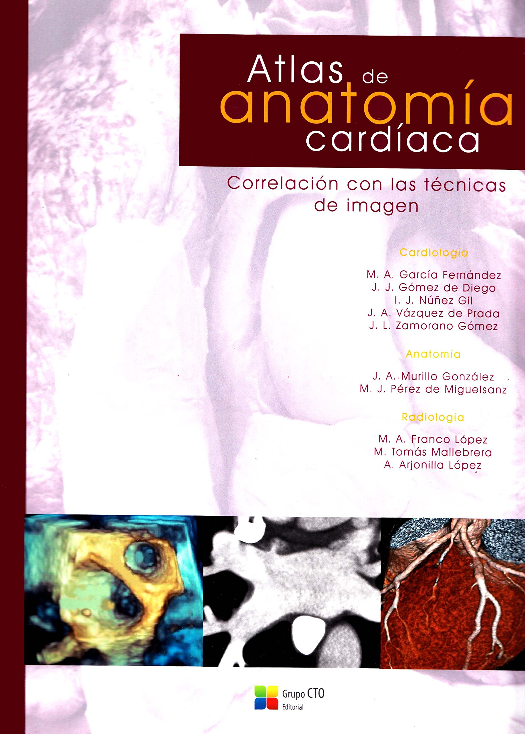 ATLAS DE IMAGEN CARDIACA: Amazon.es: S.L. CTO EDITORIAL: Libros