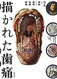 描かれた歯痛 (wellcome collection)