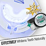 Glow LED Teeth Whitening Kit, Safe and Guarenteed Results (No Chemicals or Peroxides) 30 day supply All-Natural Teeth Whitening Paste, Made in the USA, 16 Bright LEDs Targeted to Naturally Whiten