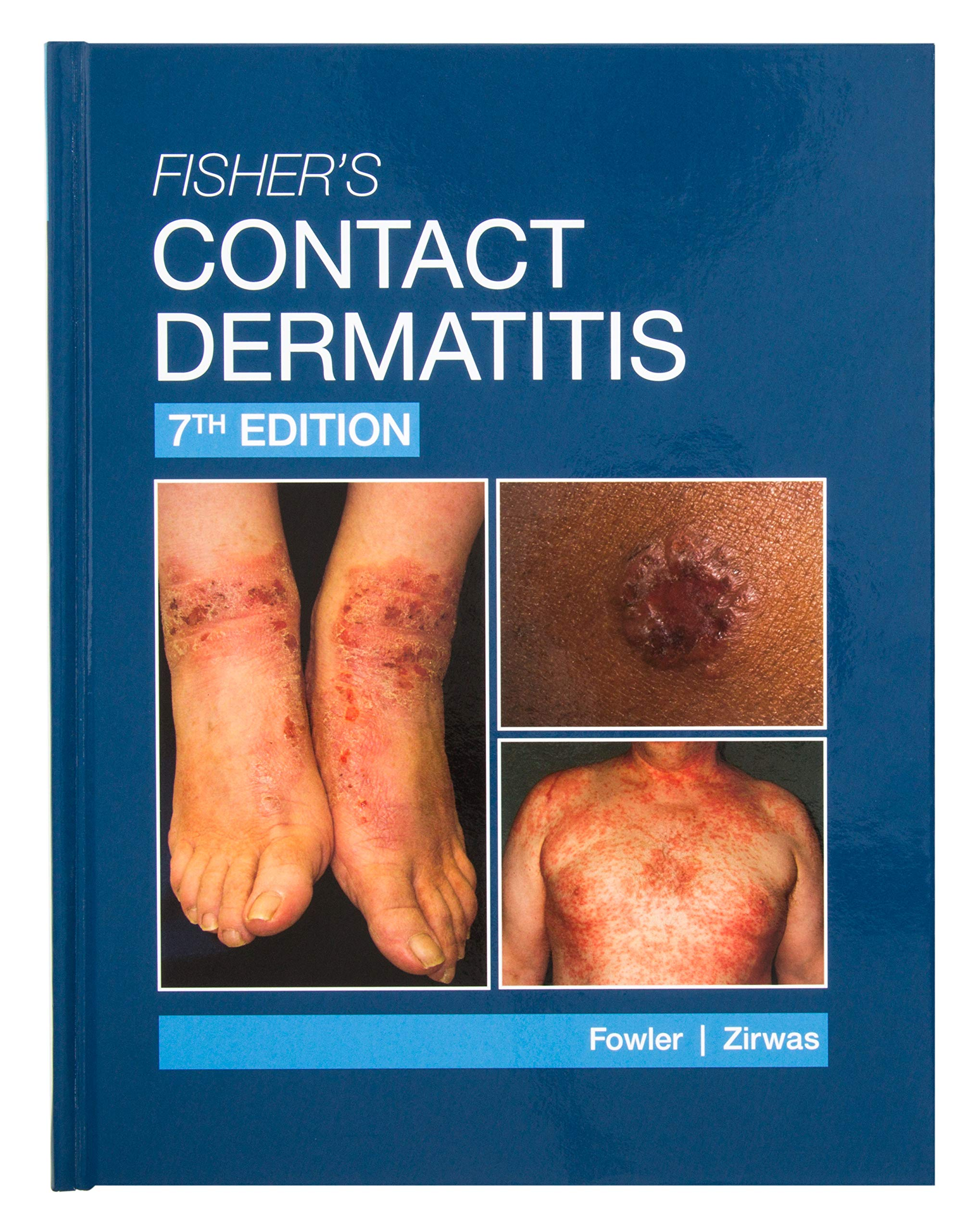 Fishers Contact Dermatitis Joseph Fowler product image