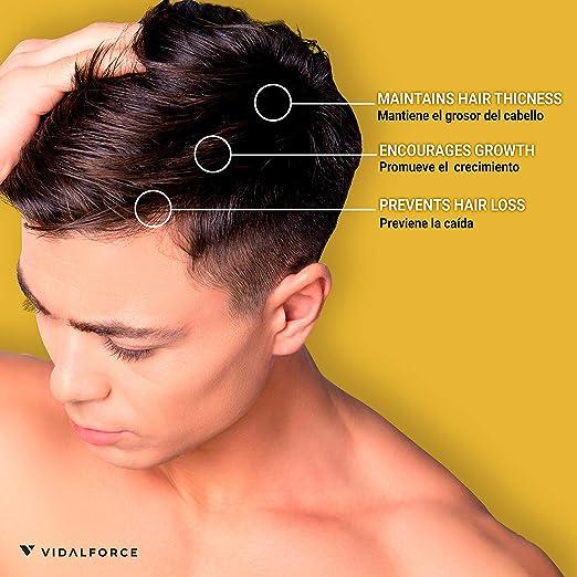 Serum cabello I Cebolla, Saw Palmetto y 14 Activos Naturales I Anticaida y crecimiento cabello natural. Complemento champu de cebolla. Alternativa natural al minoxidil pelo hombre y mujer: Amazon.es